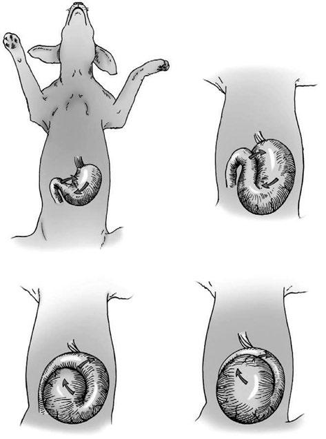 Sintomas del estomago dilatacion aguda